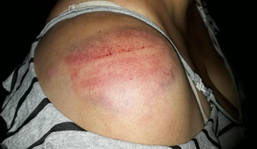 Homem é preso após agredir esposa com vara de bambu, tapas e socos no rosto, em Parapuã - Notícias - Plantão Diário