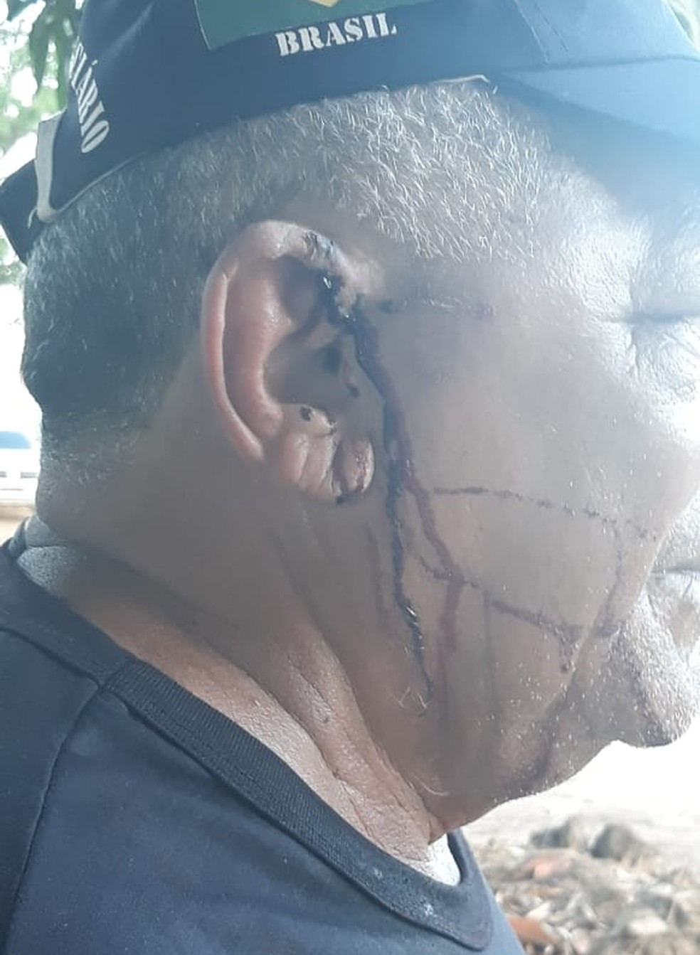 Agente ficou ferido após ser atingido por uma pedrada — Foto: Divulgação/Sinpoljuspi
