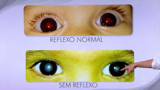Quase 20% das crianças em idade escolar têm problemas oftalmológicos