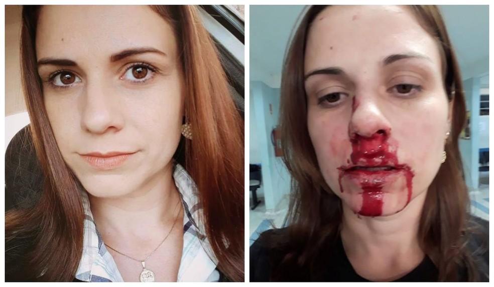 Jackeline postou foto do rosto ensanguentado após ser agredida (Foto: Arquivo Pessoal)