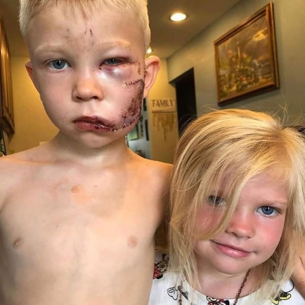 Bridger Walker e a irmã, após o incidente — Foto: Reprodução/Instragram/Lisa Walker