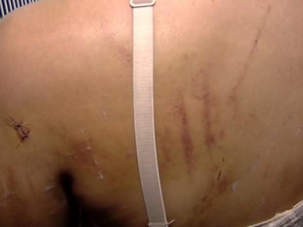 Mãe de garota torturada diz que não perdoa menores por ato: 'Desumano' em Goiás (Foto: Reprodução/TV Anhanguera)