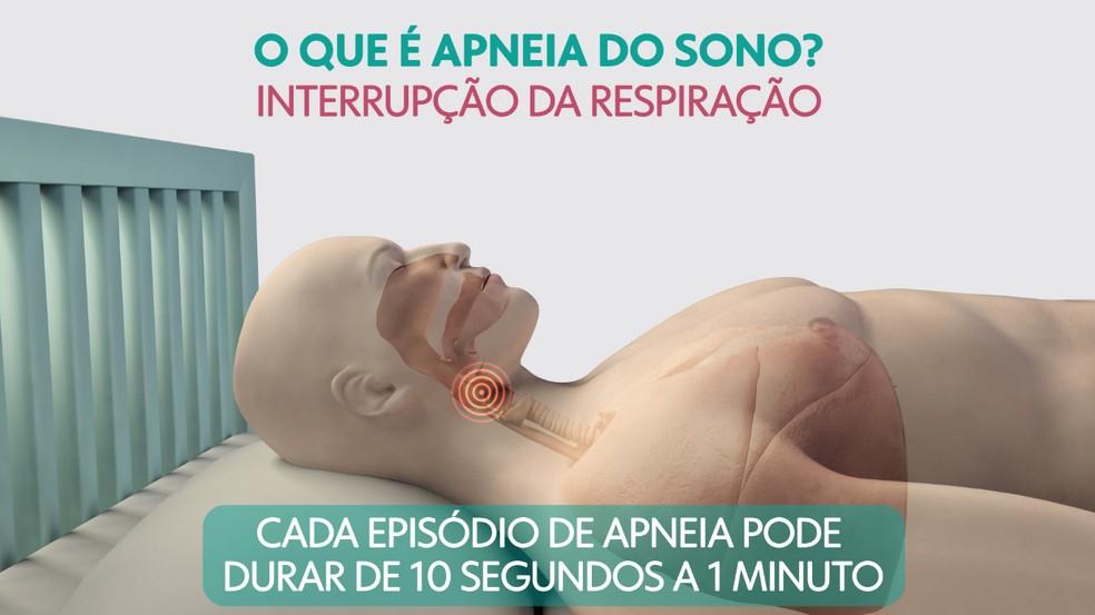 O que é apneia do sono? — Foto: Arte/TV Globo