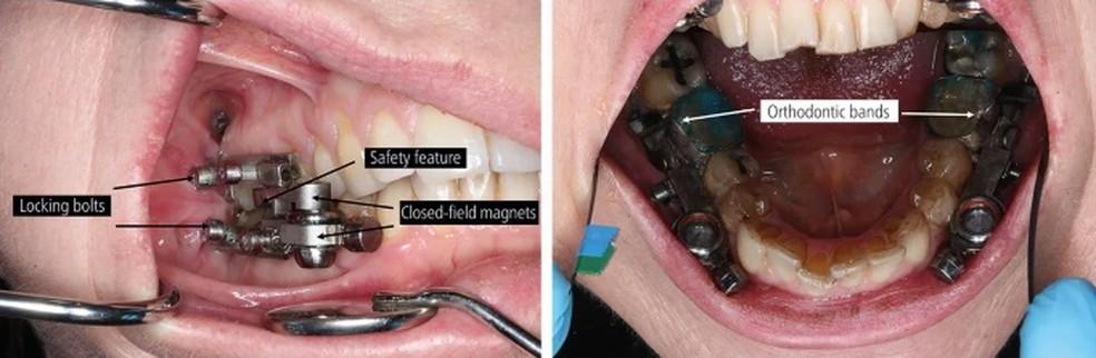 Dispositivo odontológico possui um mecanismo de segurança que permite a abertura do aparelho, em caso de emergência — Foto: Reprodução