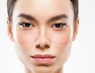 Dossiê das olheiras: quais os tipos, as causas, como tratá-las e preveni-las