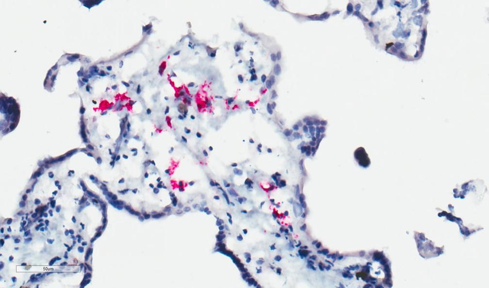 Imagem microscópica mostra células dentro da placenta infectadas pelo zika  — Foto: Mehul Suthar e Matt Zimmerman/Emory University