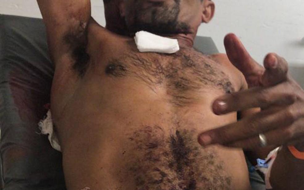 Homem foi esfaqueado pela companheira no Grande Recife — Foto: Polícia Civil/Divulgação
