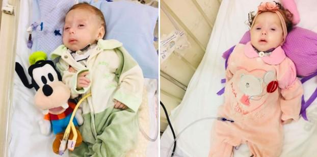 Família faz campanha para manter tratamento em casa de gêmeos com erro no metabolismo e epilepsia