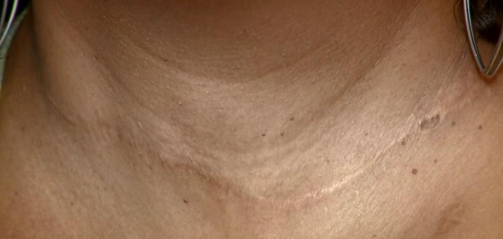 Ferimento ficou marcado no pescoço da auxiliar de produção de Limeira (Foto: Reprodução/EPTV)