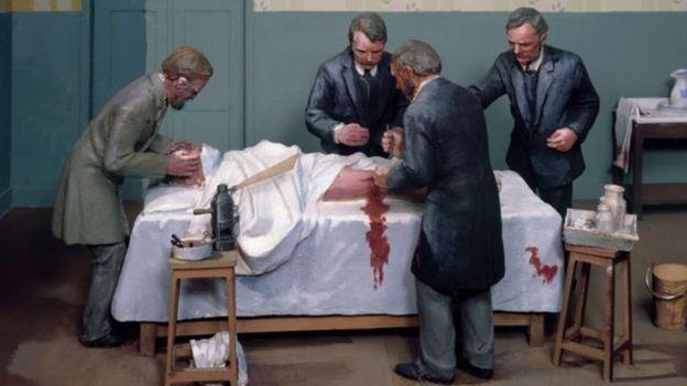 Parar o sangramento foi o primeiro grande desafio dos cirurgiões para reduzir o número de mortes em operações (Foto: GETTY IMAGES via BBC)