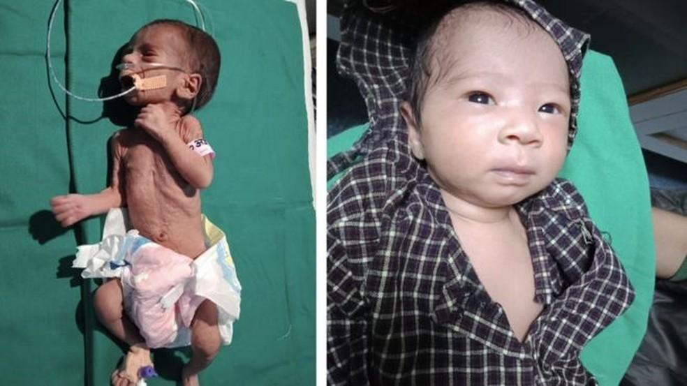 A bebê foi levada ao hospital em estado crítico em outubro, mas agora está saudável — Foto: Dr. Ravi Khanna/BBC