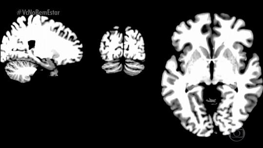 Transtorno bipolar reduz a expectativa de vida em pelo menos 10 anos