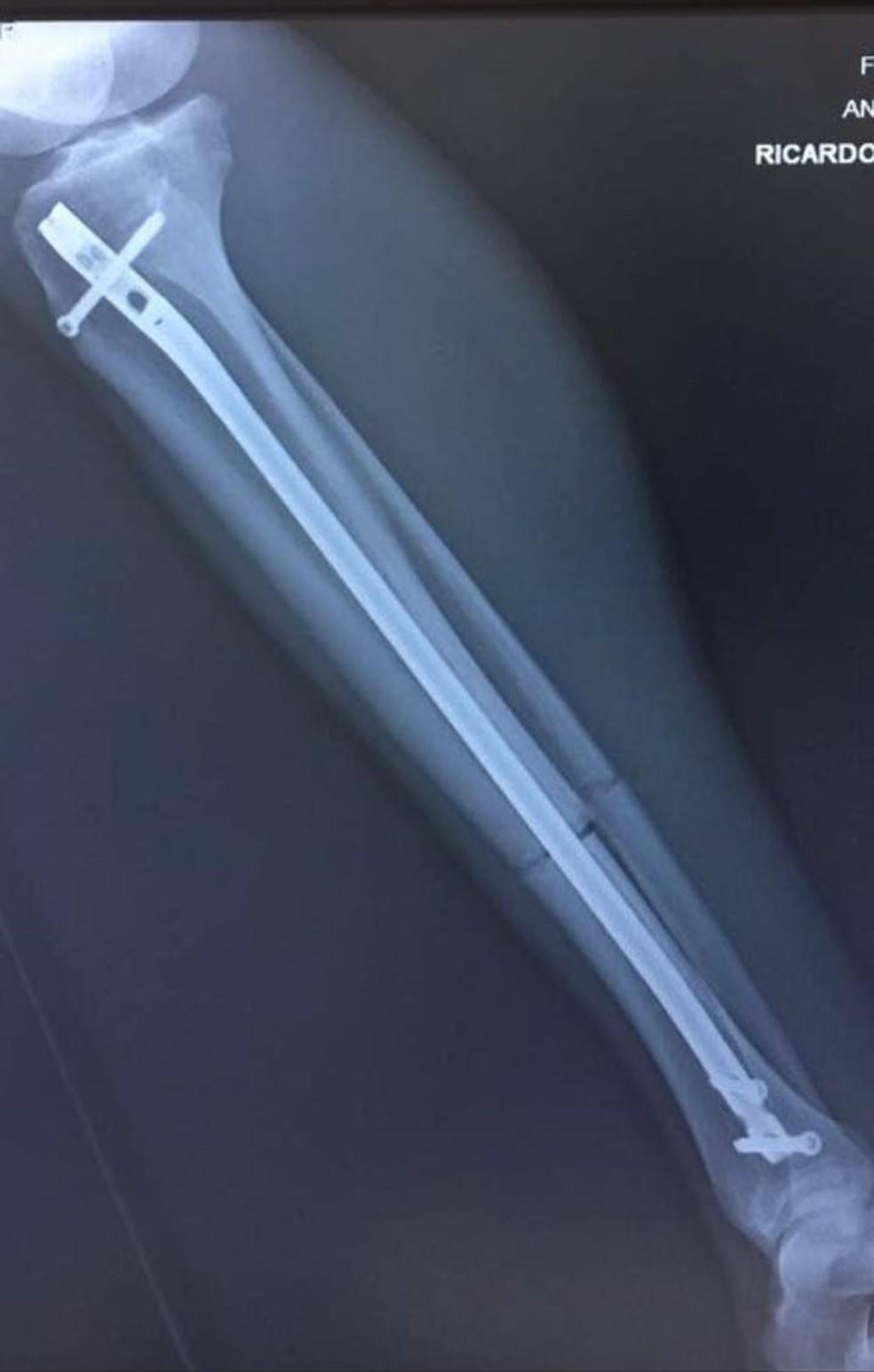 Osso da perna direita de João Paulo — Foto: Arquivo Pessoal