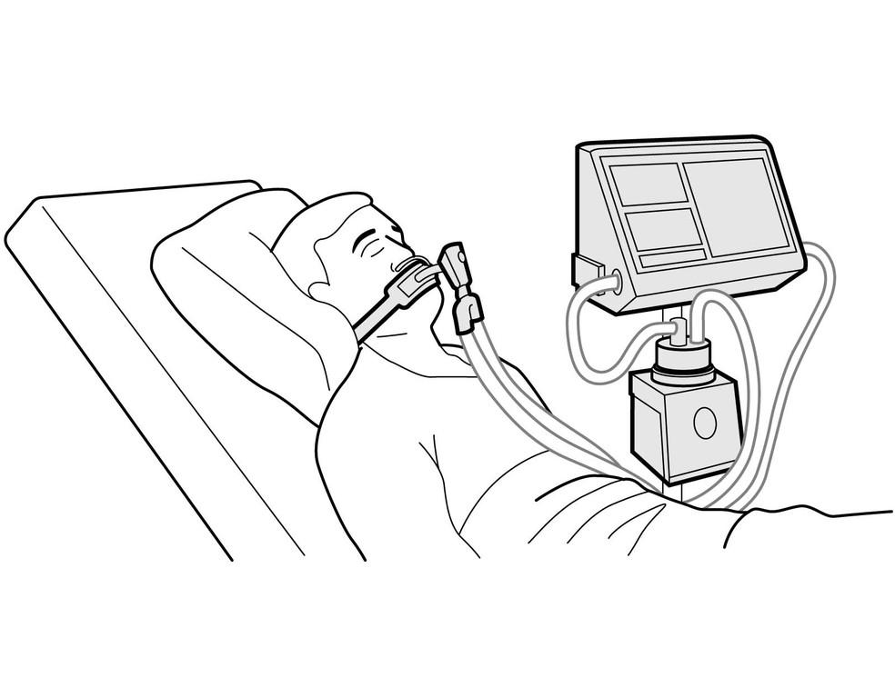Respiradores são usados para auxiliar pacientes com insuficiência respiratória — Foto: Rodrigo Sanches/Arte G1