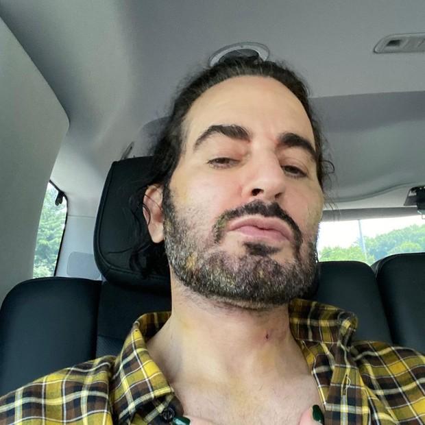 Marc Jacobs seis dias após cirurgia estética (Foto: Reprodução/Instagram)
