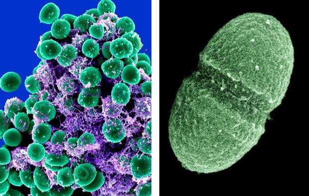 À esquerda, imagem de bactérias Staphylococcus epidermidis, em verde, feitas com microscópio eletrônico; à direita, a bactéria Enterococcus faecalis, que vive no aparelho digstino humano; os dois organismos são alguns dos estudados pelo projeto (Foto: AP)