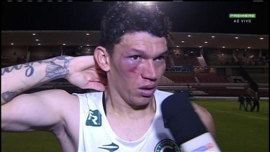 Essa doeu! Viçosa faz gol, mas sai com olho roxo e inchado após chute no rosto; vídeo