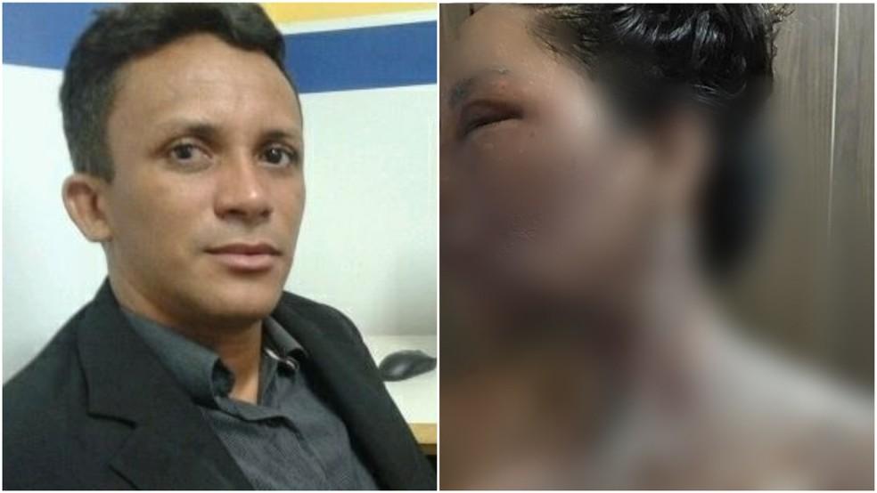 André Coelho é acusado de jogar água quente contra a esposa e atual vereadora de Peritoró, Lionete Araújo — Foto: Arquivo pessoal