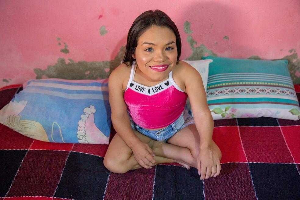 Daniela de Oliveira, de 29 anos, foi diagnosticada com mucopolissacaridose (MPS) — Foto: Camila Lima/Sistema Verdes Mares