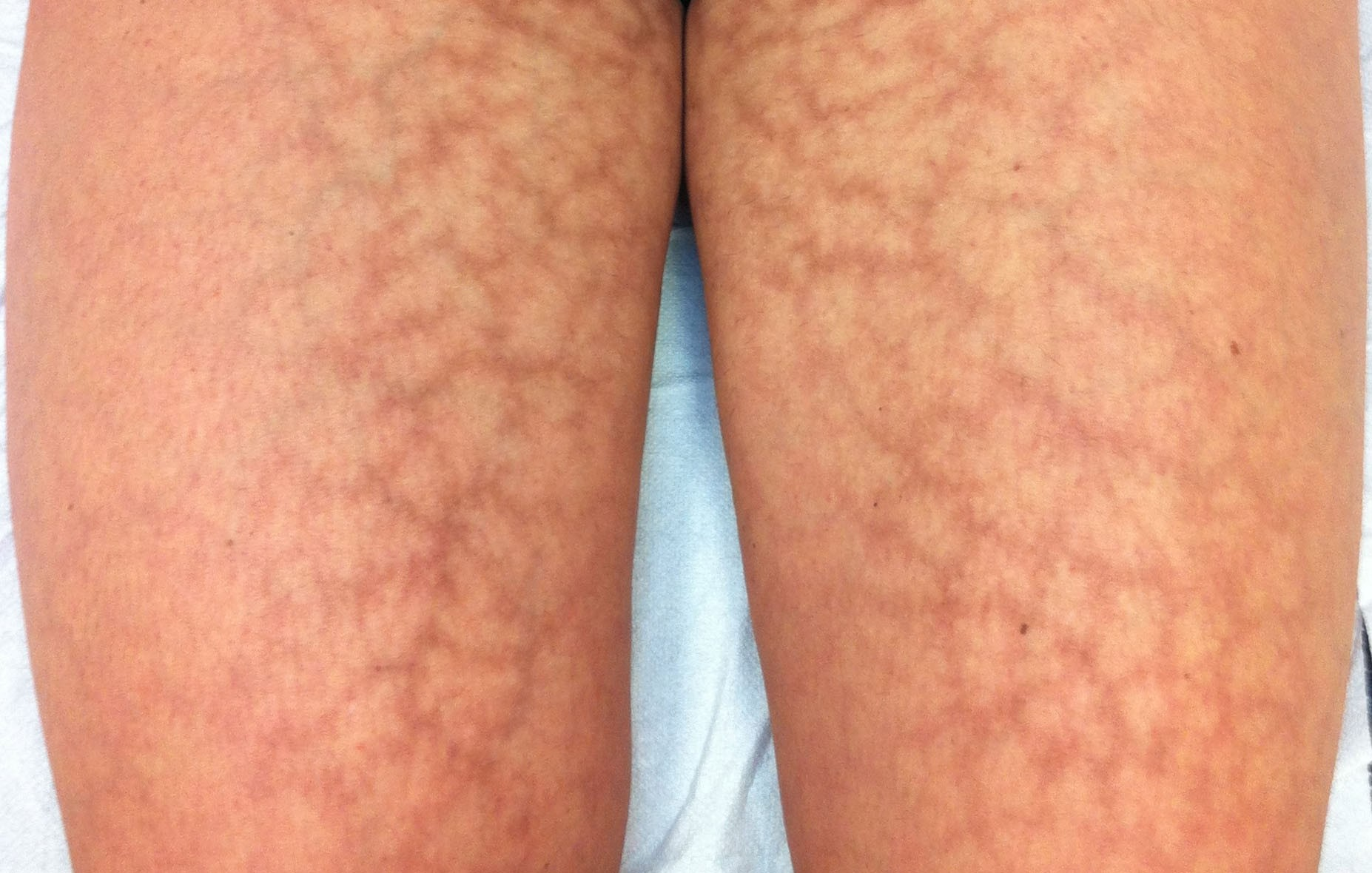 Região afetada pela doença (Foto: Reprodução)