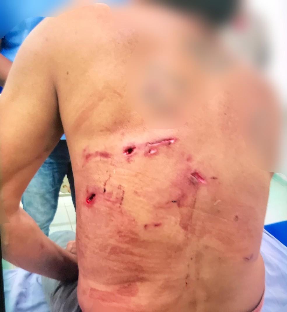 Homem é salvo por cães ao ser atacado por onça em fazenda de Porto Murtinho (MS). — Foto: Divulgação/Corpo de Bombeiro
