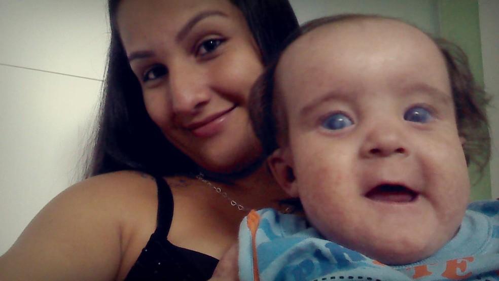 Criança de Itapira (SP) foi diagnosticada com síndrome de Rothmund-Thomson aos três meses — Foto: Natália Matos/Arquivo Pessoal