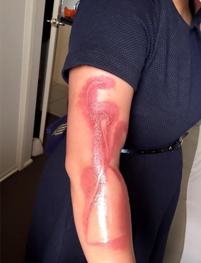 Não é tatuagem, é queimadura de segundo grau