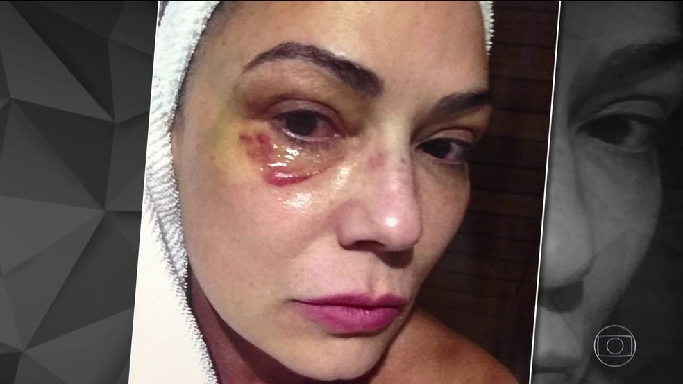 Luiza Brunet chegou a postar foto com olho machucado (Foto: Reprodução/TV Globo)