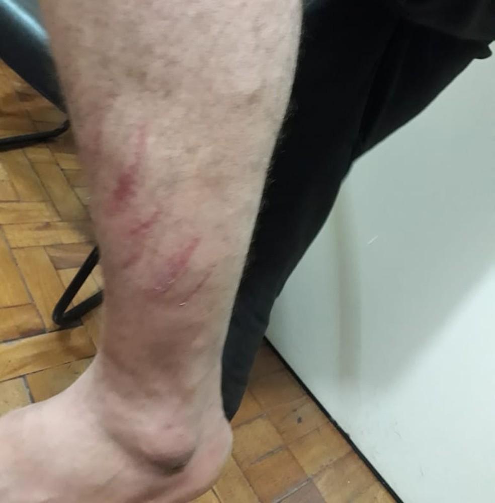 Perna do autor apresentava alguns arranhões provocados pela vítima, diz polícia (Foto: Polícia Civil/Divulgação)