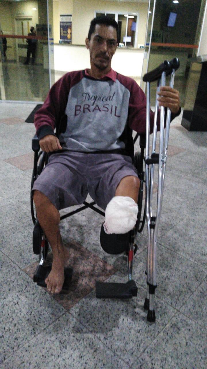 Motoboy tem pé amputado no ABC após colisão com outro motociclista: 'ele passou a 120 km/h e vi meu pé pendurado'