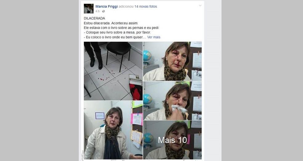 Professora publicou post em rede social sobre a agressão (Foto: Reprodução/Facebook)