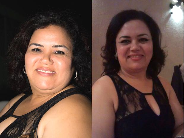 A cabeleireira Dorcas de Souza, antes e depois da hipnose (Foto: Arquivo Pessoal)