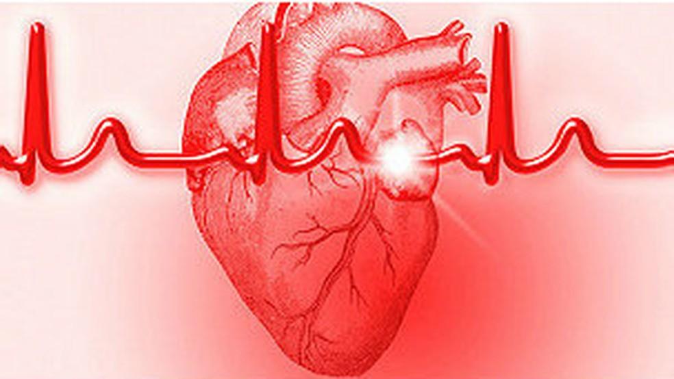Sintomas como dores no peito, falta de ar e palidez podem ser indicativos de infarto — Foto: BBC