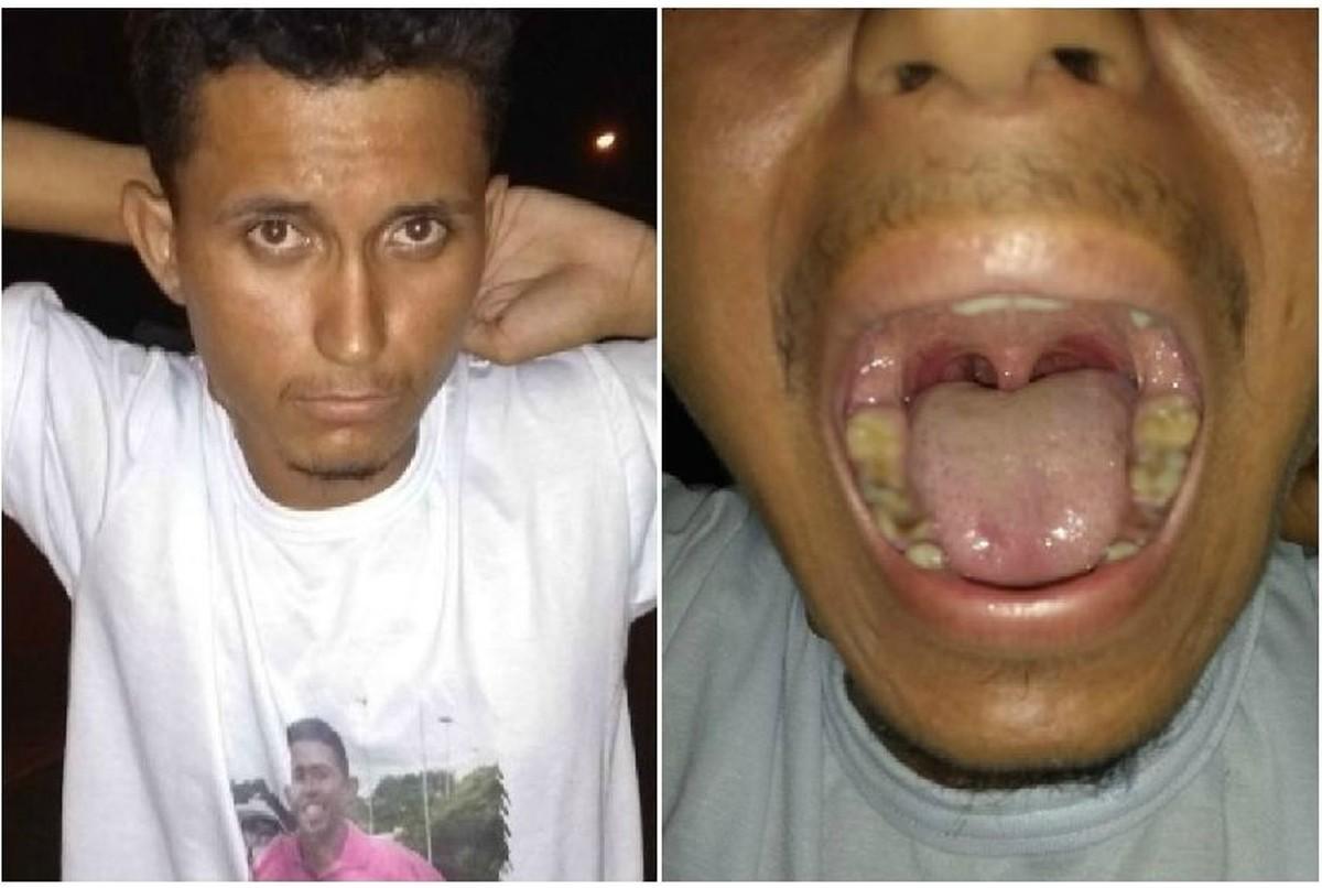 Ladrão é reconhecido pelos dentes após fazer avaliação odontólogica e assaltar clínica em Boa Vista
