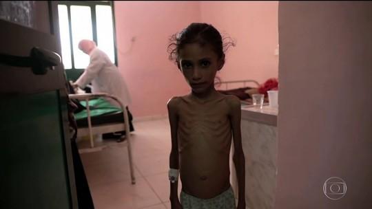 ONU alerta que população do Iêmen está à beira da pior crise de fome do mundo