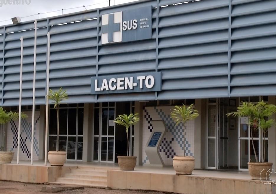 Prefeitura de Araguaína diz que quase 800 exames de coronavírus enviados ao Lacen não ficaram prontos