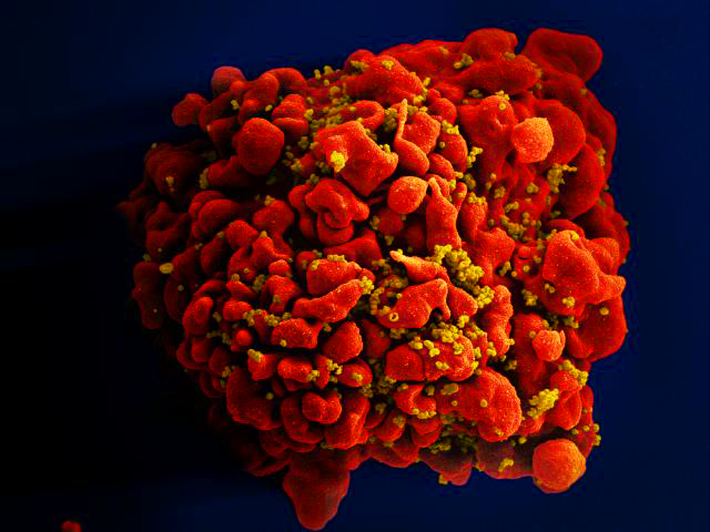 Célula infectada por partículas do vírus HIV, anexas à superfície  (Foto: National Institute of Allergy and Infectious Diseases (NIAID))