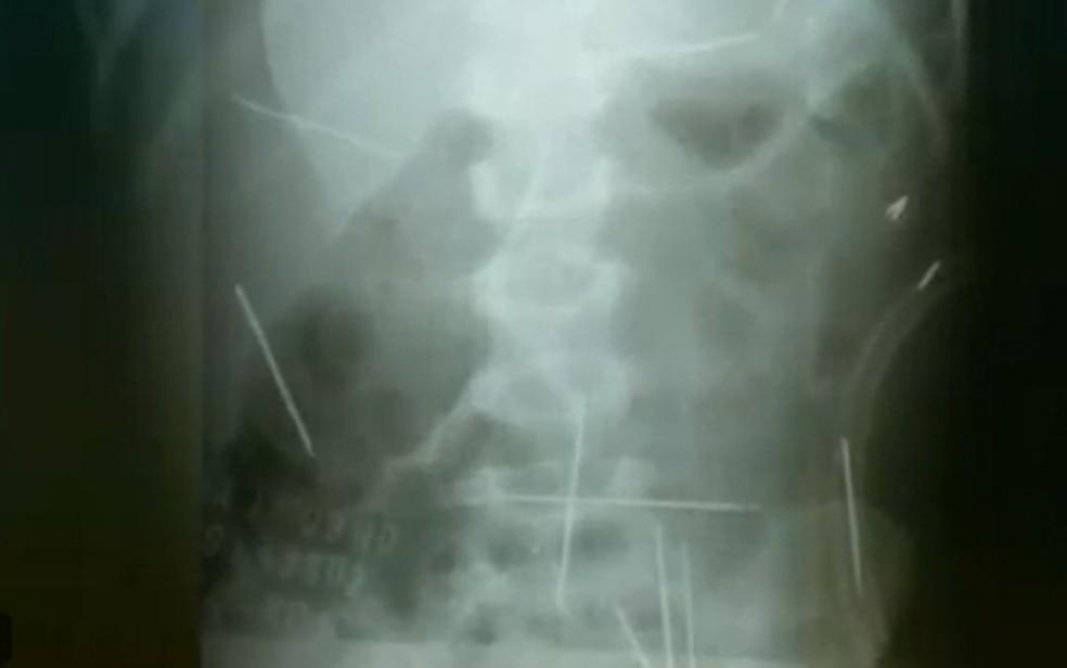 Radiografia mostrou agulhas no corpo de criança; caso ocorreu em Ibotirama, na Bahia — Foto: Reprodução/TV Globo