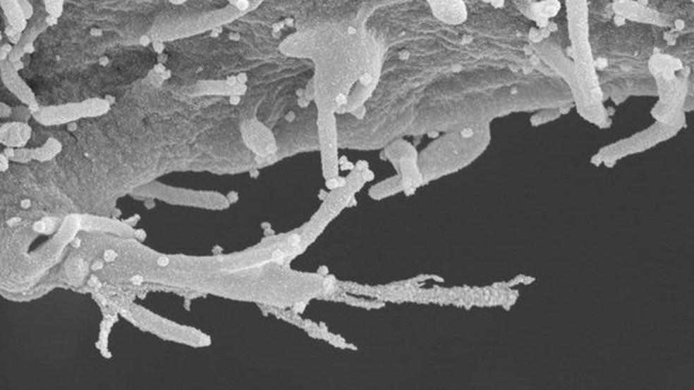 As imagens reveladas pelo estudo mostram células humanas infectadas com um detalhamento inédito — Foto: Elizabeth Fischer/Microscopy Unit NIH/NIAID/BBC