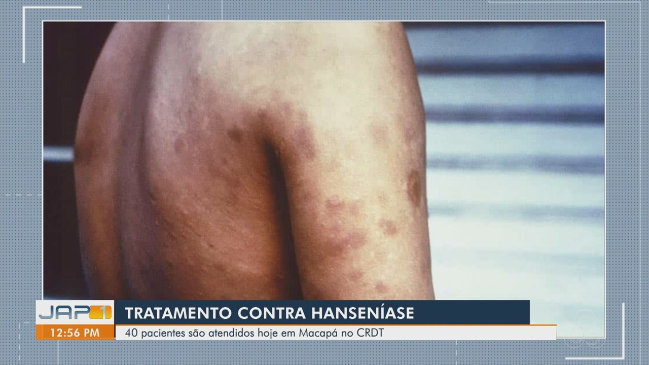 Centro de Referência atua no tratamento de 40 pessoas com hanseníase em Macapá