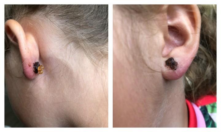 Orelhas infeccionadas de Poppy (Foto: Arquivo pessoal)