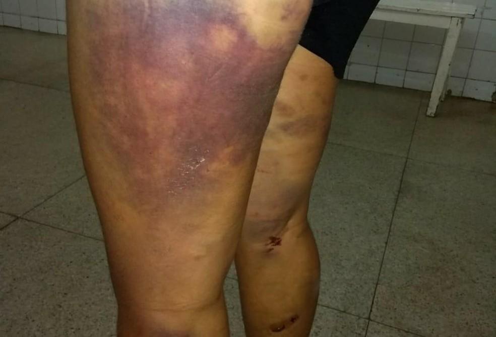 Vítima também foi agredida nas pernas com pedaços de madeira (Foto: Polícia Militar/Divulgação)