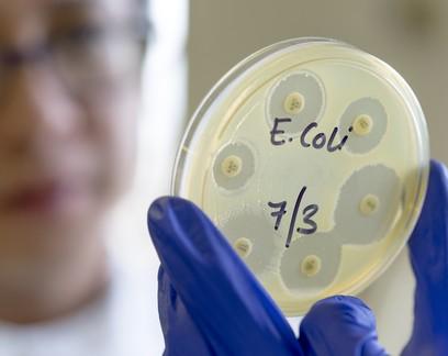 Cientistas criam bactéria capaz de consumir CO2 e reduzir gases de efeito estufa