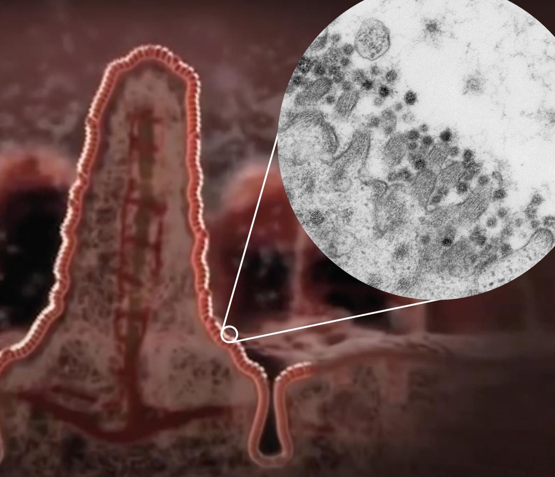 Coronavírus Sars-CoV-2 na borda de uma célula do intestino (Foto: Kèvin Knoops, Raimond Ravelli and Maaike de Backer: Maastricht University)