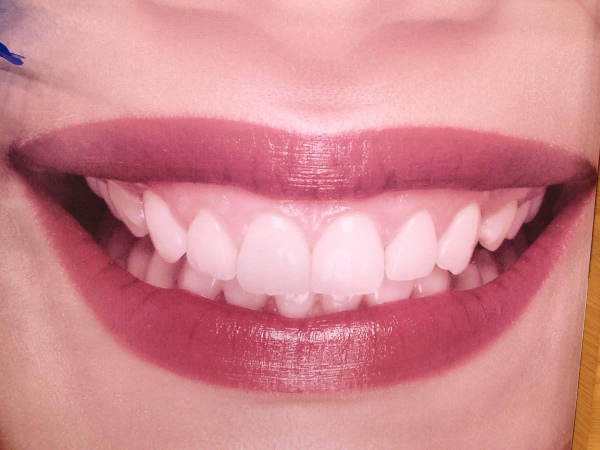 Sorrir faz pessoas parecerem mais velhas, diz estudo