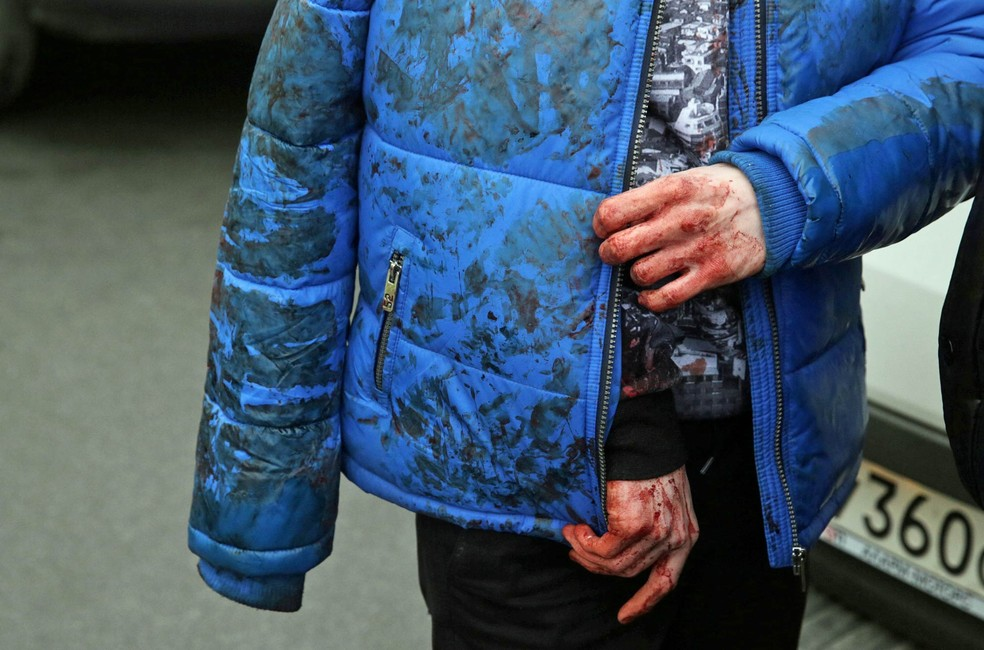 Ferido ficou coberto de sangue após explosão na estação de metrô Sennaya Ploshchad, em São Petersburgo, Rússia (Foto: Anton Vaganov/Reuters)