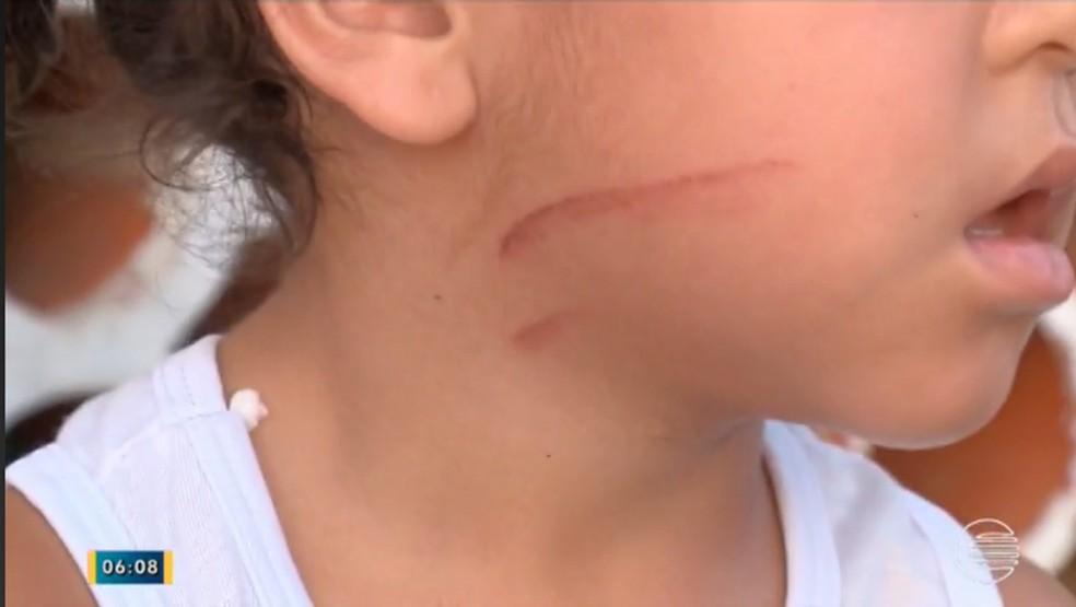 Ana foi atingida por uma das hélices, mas ferimento foi leve (Foto: Reprodução/Tv Clube)