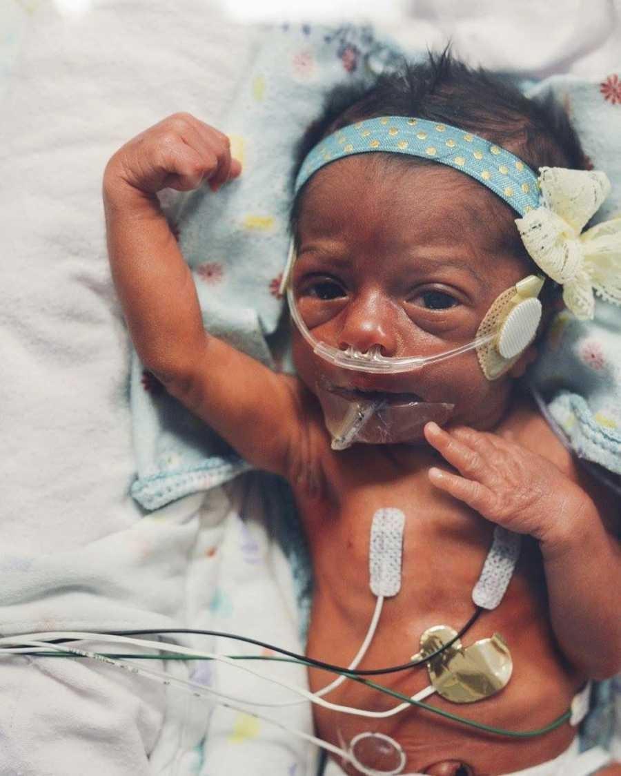 Goldie nasceu prematura (Foto: Reprodução)