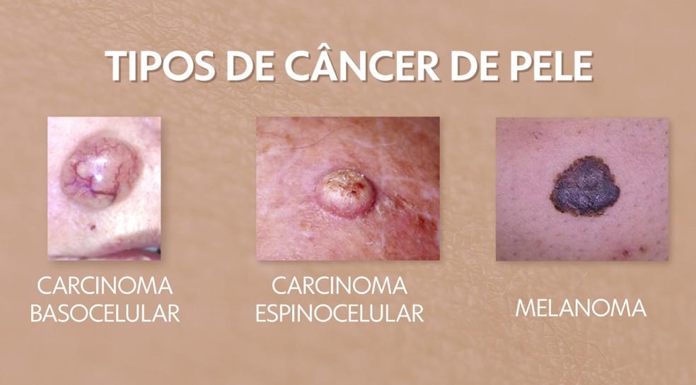 Veja os tipos de câncer de pele — Foto: Arte/TV Globo