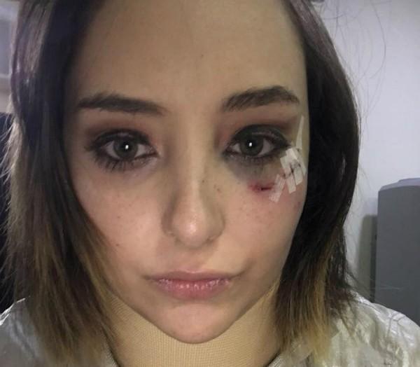 A atriz Elisa Vicedo (Foto: Reprodução Facebook)